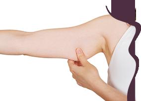 clinica-la-forme-cirurgia-plastica-corpo-lifting-de-braco-thumb
