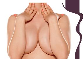 clinica-la-forme-cirurgia-plastica-mama-mamoplastia-redutora-thumb